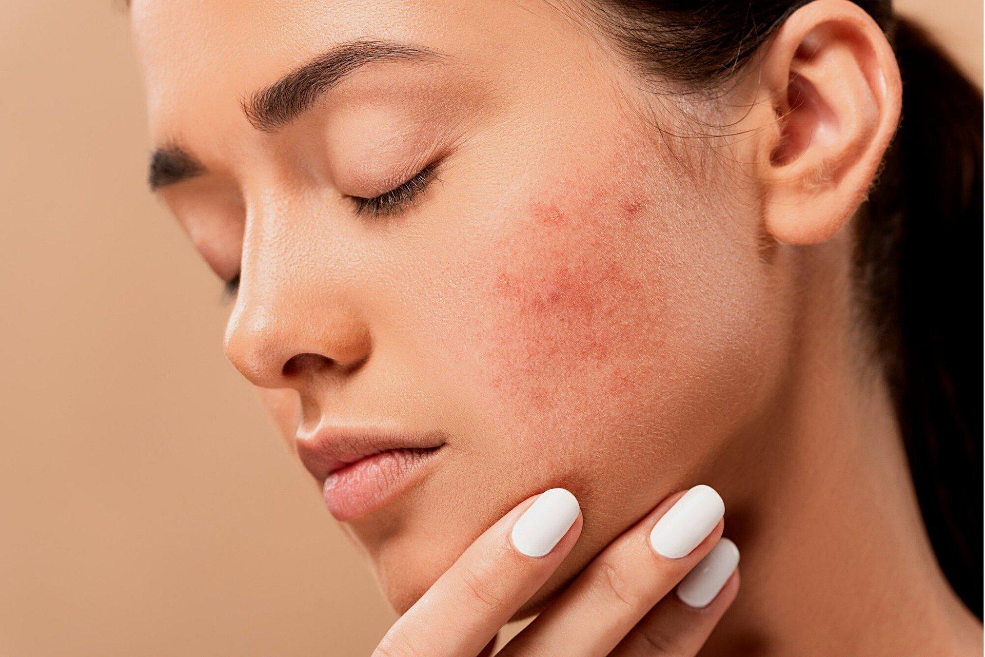 acne-5561750_1920